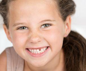 La perte des dents de lait