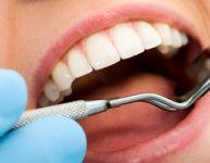 La plaque et le tartre dentaires : deux choses différentes