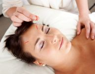 Acupuncture facelift